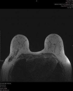 MRI שדיים
