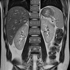 MRI בטן
