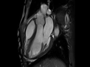 MRI לב