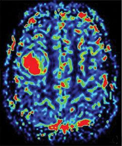 MRI פרפוזיה