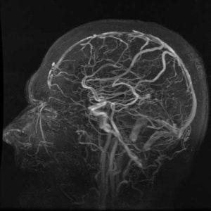 MRI כלי דם