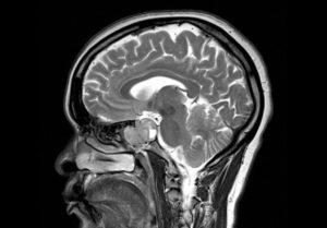 MRI מוח