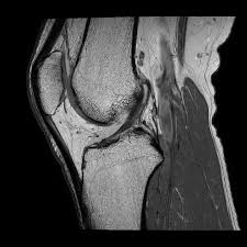 MRI ברך